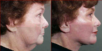 facelift before and after photo