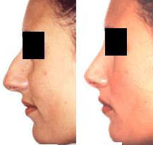 rhinoplasty (nose job) before and after photo